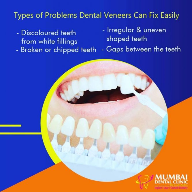 Best Dental Clinic in Udaipur